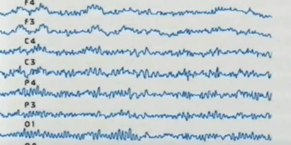 кривая энцефалограммы